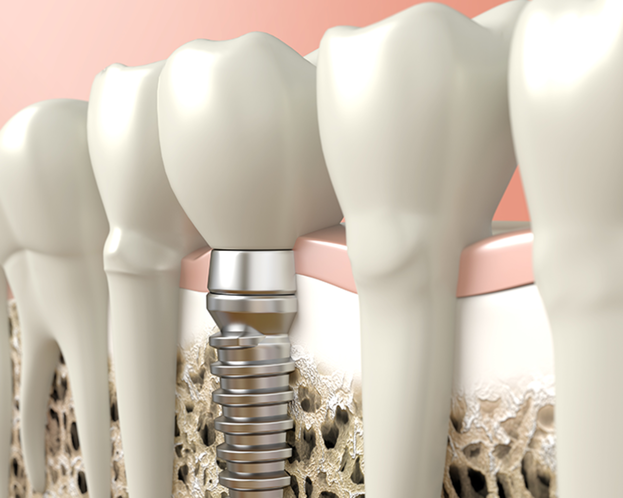 https://westbrookdentalcentre.com/wp-content/uploads/2017/10/Implant_Blog-2500x2000.png