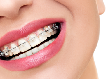 Orthodontic Post Procedure